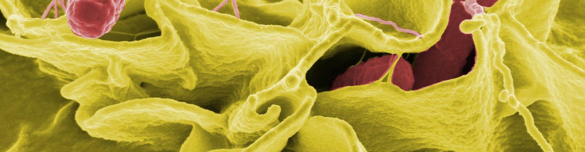 Un batterio moderno: la salmonella nelle preparazioni carnee.