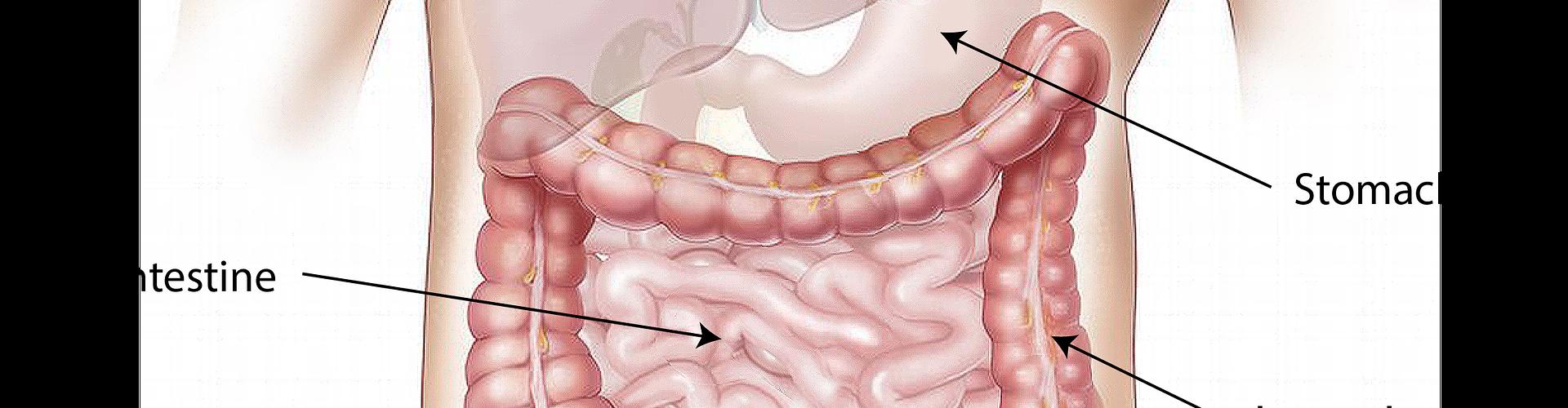 Dieta FODMAP e sindrome dell'intestino irritabile
